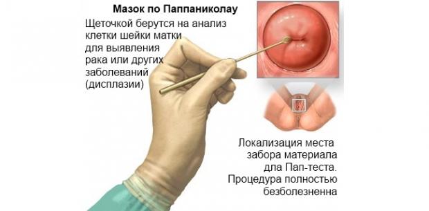 Шейка матки чистая: что это значит, методы диагностики шейки