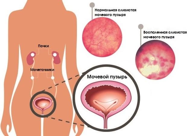 Чем грозит опущение матки: последствия, лечение