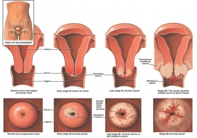 Однорогая матка: признаки, лечение и возможность беременности