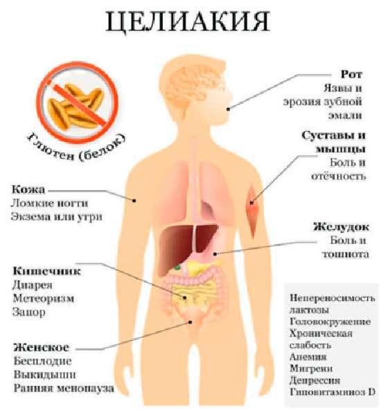 Газы при беременности: причины, симптомы. питание, медикаменты, профилактика