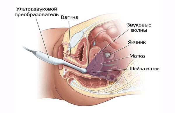 Атипическая гиперплазия эндометрия: особенности протекания и лечение