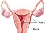 Что такое очаговая гиперплазия эндометрия: симптомы и лечение
