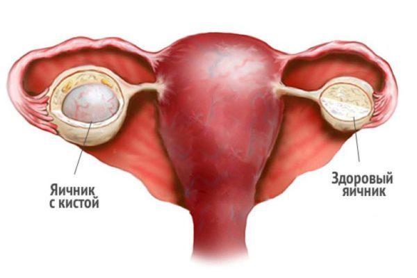 Как выходит киста яичника во время месячных и как это распознать?