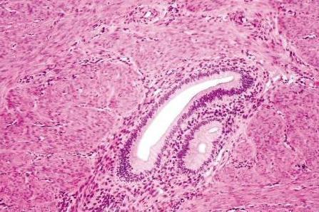 Аденомиоз и гиперплазия эндометрия: в чем разница между ними?