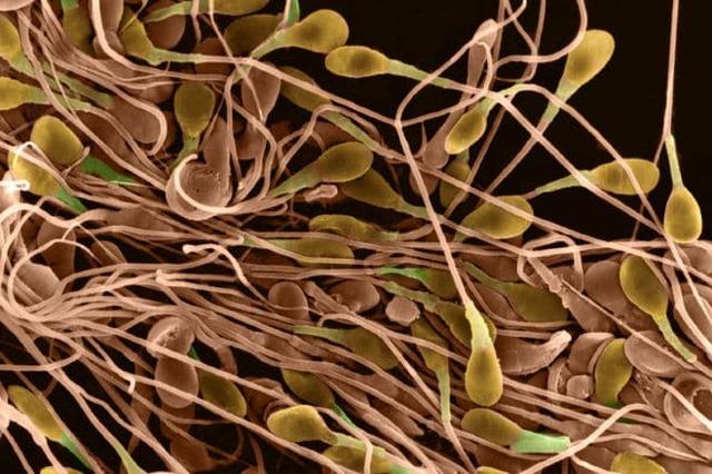 Астенозооспермия и беременность: степени, причины, диагностика, лечение