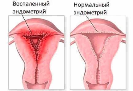 Острый эндометрит: причины, характер, диагностика и лечение