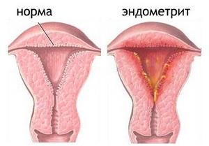 Гиперэхогенный эндометрий: причины, лечение, диагностика