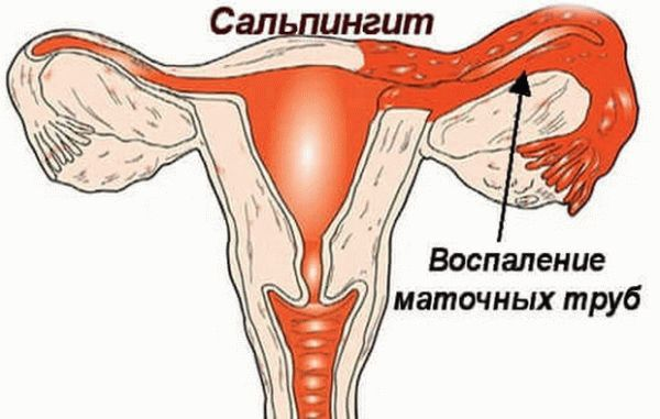 Гнойные выделения у женщин: симптомы, причины, лечение