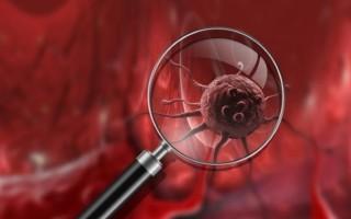 Рак яичников и матки: симптомы и методы лечения заболевания