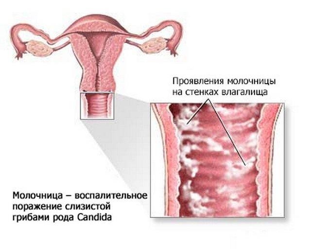 Зеленые выделения при беременности: причины, характер слизи, диагностика и лечение, меры профилактики