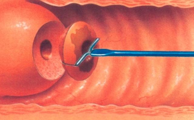 Последствия и осложнения после биопсии матки у женщин
