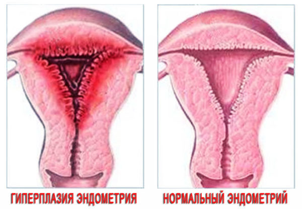 Секс при гиперплазии эндометрия: можно ли заниматься?