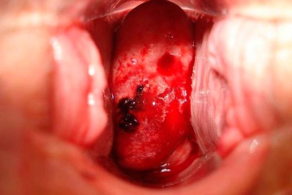 Рак шейки матки (3 стадия): особенности протекания и симптомы