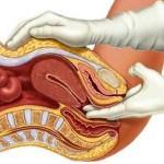 Как гинеколог определяет беременность при осмотре?