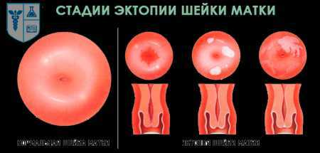 Эктопия шейки матки с АЗТв