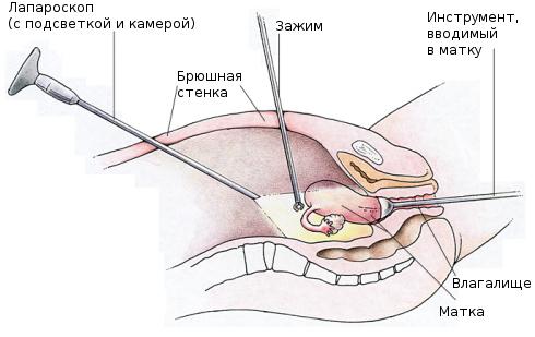 Лапароскопия при эндометриозе: особенности и ход процедуры