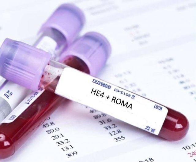 Индекс roma 1 в пременопаузе: расшифровка, показатели