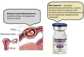 Метотрексат при внематочной беременности: показания, противопоказания