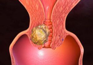 Лечение рака шейки матки народными средствами: рецепты