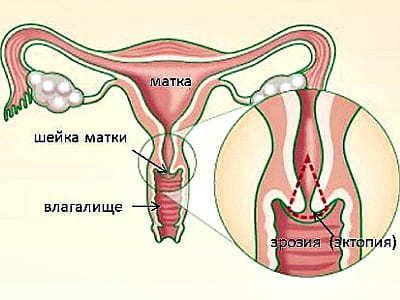 Можно ли планировать беременность после прижигания эрозии?