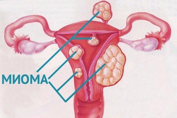 Диагностика миомы матки на УЗИ: ход и методы