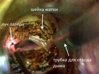 Лазерное лечение лейкоплакии шейки матки: суть процедуры