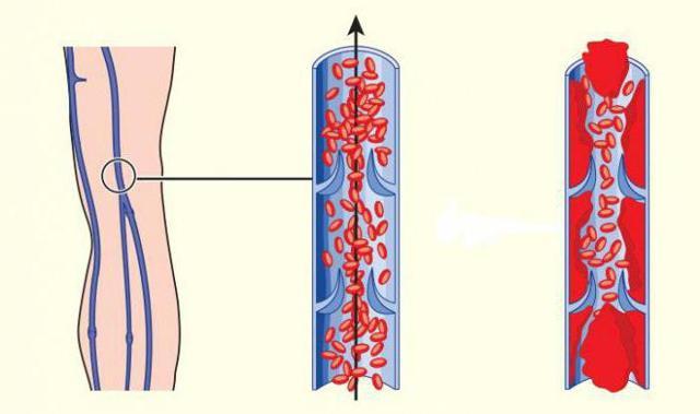 Нарушение гемодинамики: степени при беременности, особенности