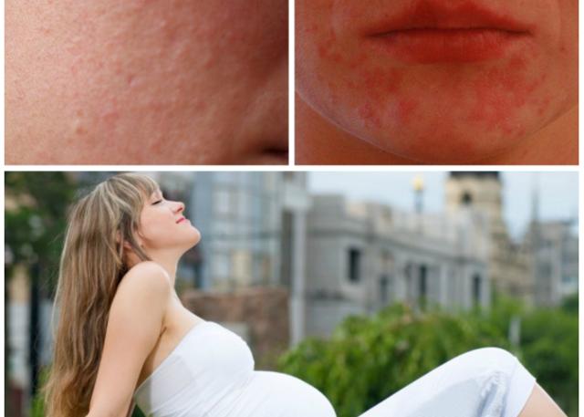 Сыпь при беременности: как выглядит, причины возникновения и места локализации, лечение, опасность