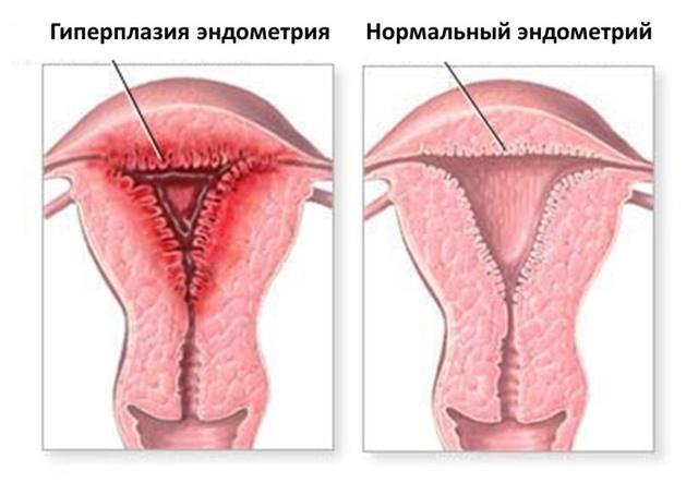 УЗИ эндометрия: зачем нужно и как проводится
