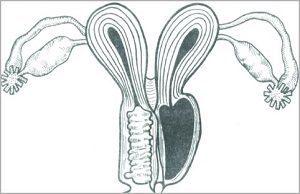 Двойная матка и беременность: возможность зачатия, трудности