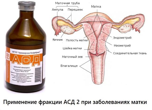 Как принимать АСД при миоме матки: советы и рекомендации