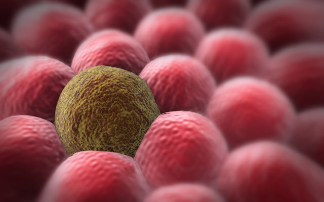 Плоскоклеточный рак шейки матки: особенности и причины развития, лечение