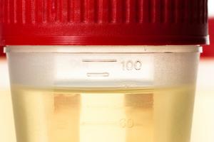 Запах мочи при беременности: изменения, симптоматика