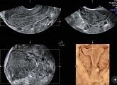 Допплерометрия сосудов матки: особенности ее проведения
