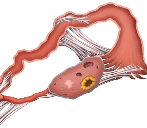 Трубно-перитонеальное бесплодие: симптомы и особенности