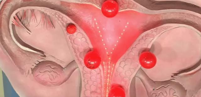 Атрофия эндометрия: суть и особенности состояния