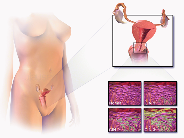 Дисплазия шейки матки и беременность: совместимость