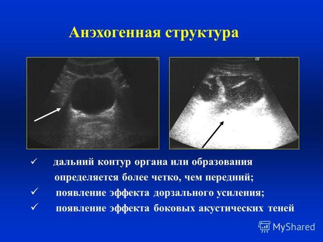 Анэхогенное образование в матке: норма или патология