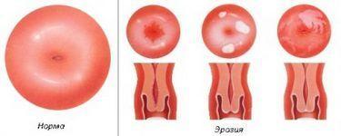 Симптомы и признаки эрозии шейки матки у женщин