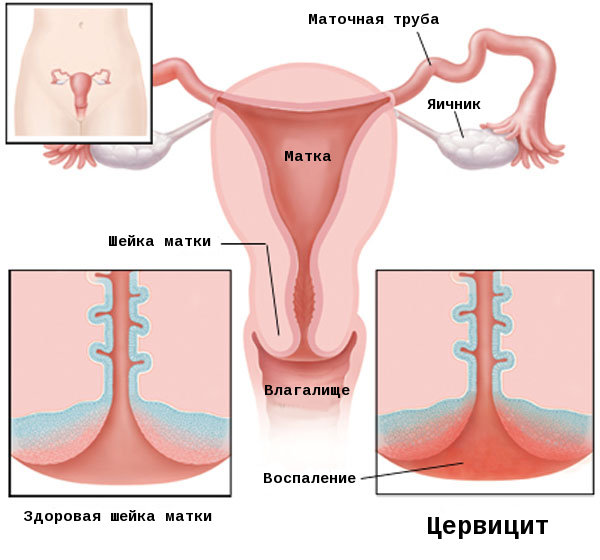 Экзоцервицит шейки матки: причины, симптомы и лечение