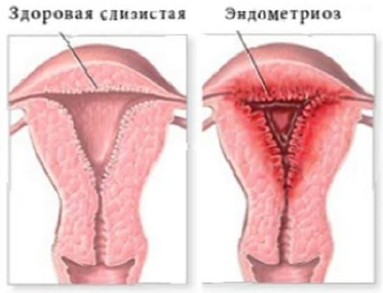 Может ли эндометриоз перерасти в рак, и с чем это связано?