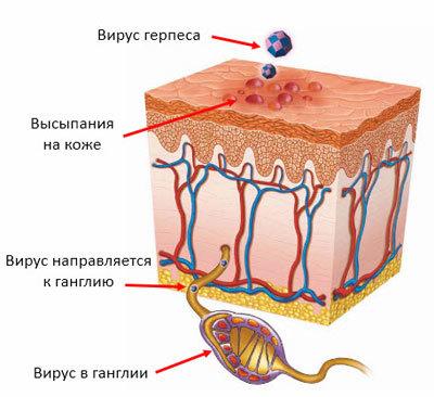 Герпес на шейке матки: основные причины развития и методы лечения