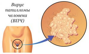 Фотодинамическая терапия дисплазии шейки матки: плюсы и минусы, противопоказания