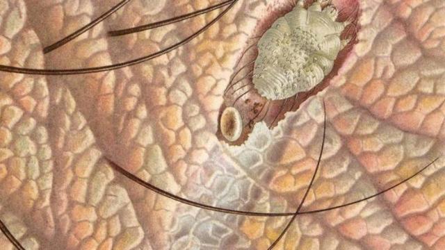 Чесотка при беременности: симптомы и лечение
