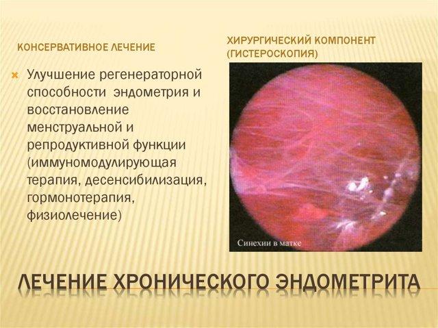 Гнойный эндометрит: протекание и лечение заболевания