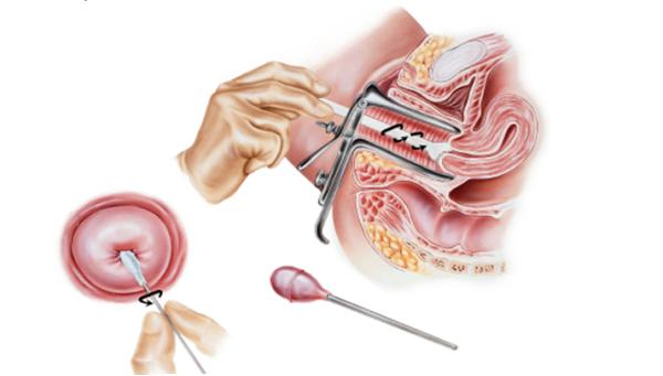Аргоноплазменная абляция шейки матки: суть процедуры, показания, цены