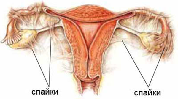 После секса болит матка: причины и способы снятия