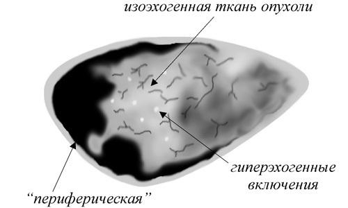 Изоэхогенное образование в матке: что это, как проявляется на УЗИ?