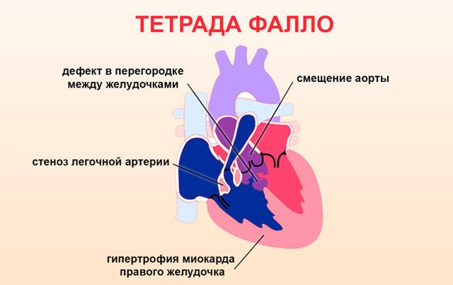 Аритмия при беременности: причины и лечение