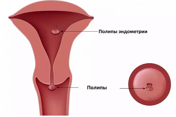 Дюфастон при полипе в матке: эффективность и противопоказания